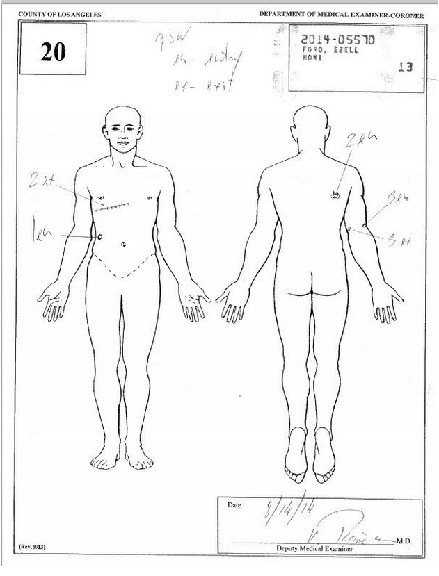 Ezell Ford Autopsy Report
